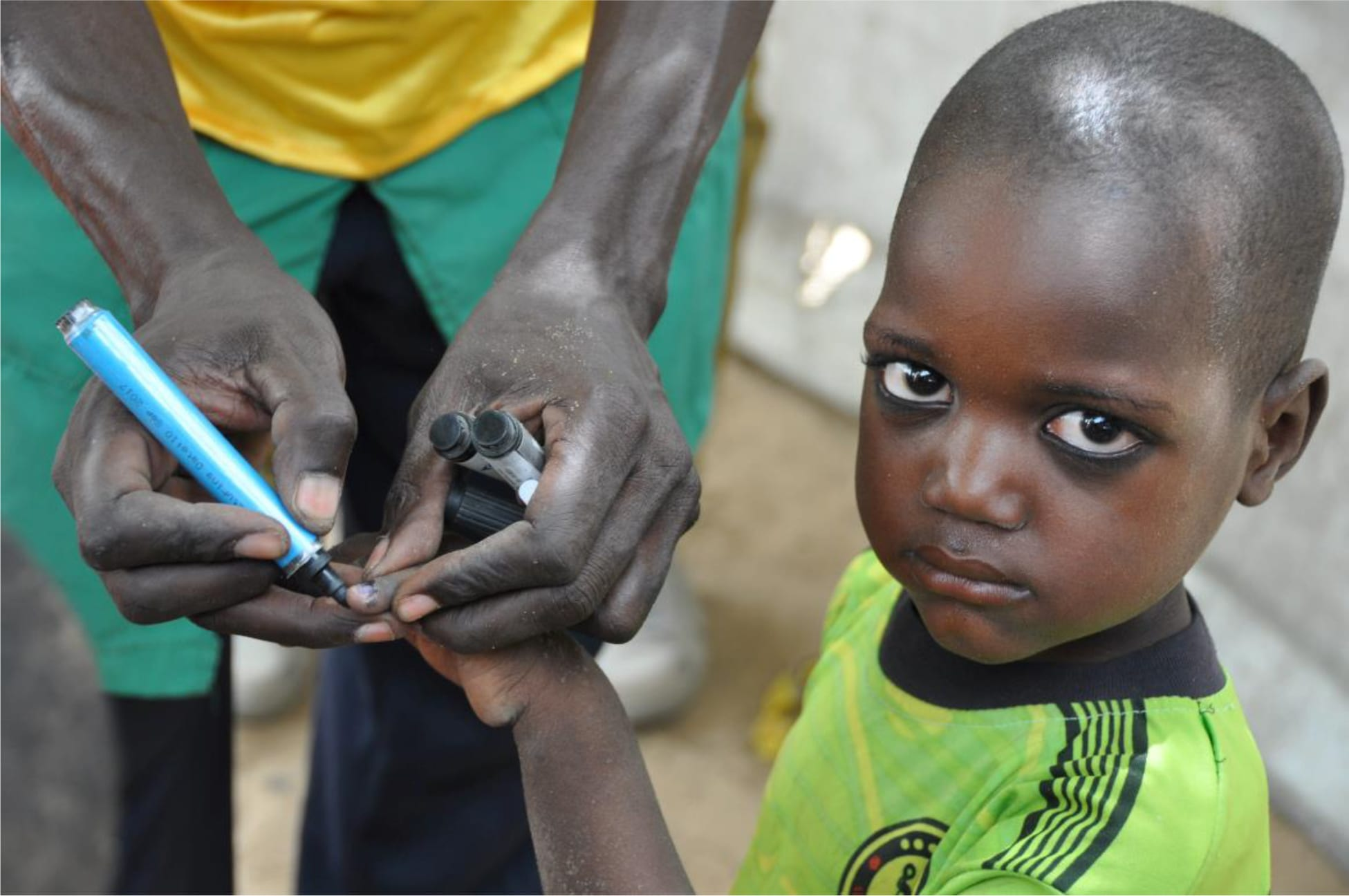 a child's finger marked to indicate being vaccinated in Chad